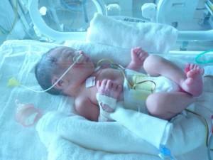 出産 未熟児 早産
