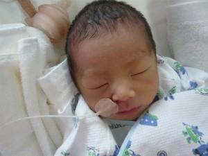 未熟児 新生児 赤ちゃん